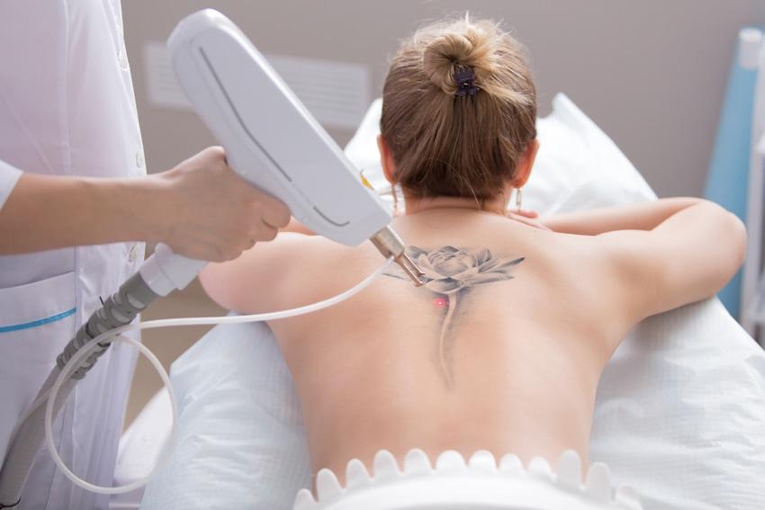 Cómo quitar tatuajes de forma segura y definitiva