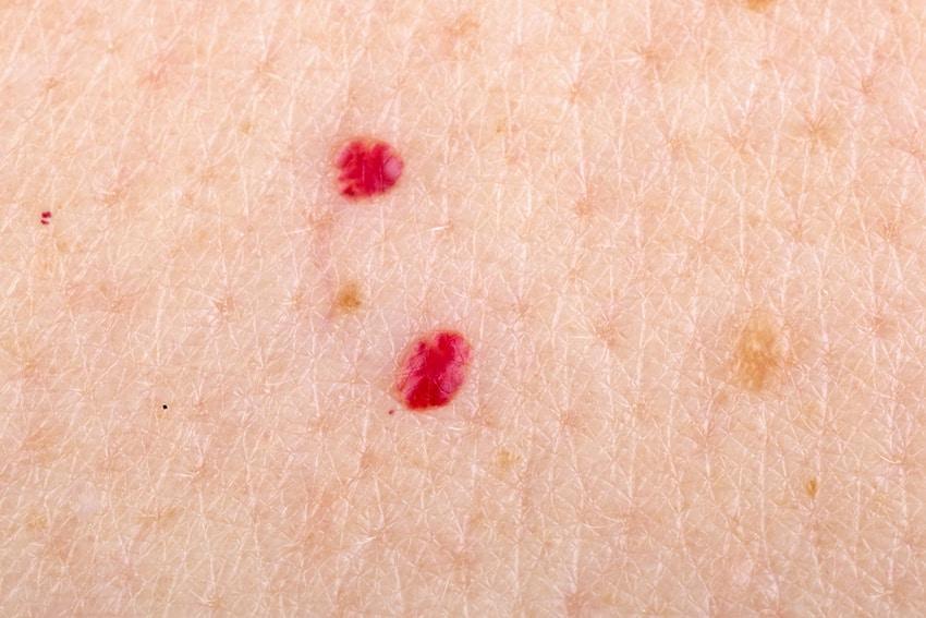 Como eliminar definitivamente los puntos rojos en la piel