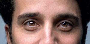 Cómo reducir o eliminar las ojeras y bolsas de los ojos