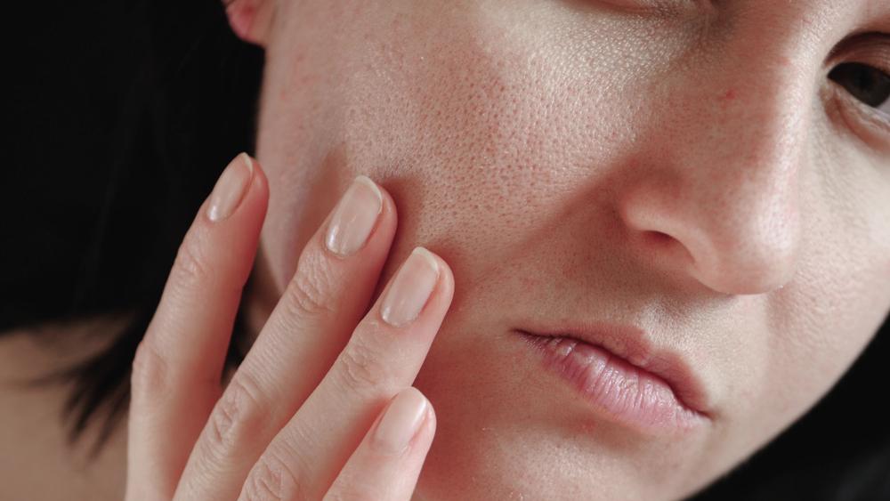 como eliminar los poros abiertos de la cara en mallorca | dermativa