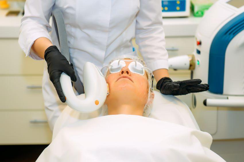 cuperosis láser | tratamiento en Mallorca | dermativa