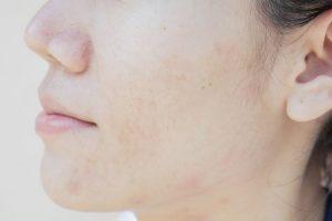 ¿Se pueden eliminar las marcas de acné con láser?