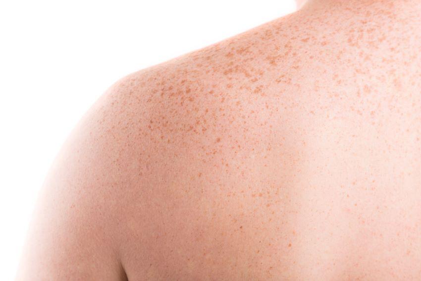 Causas, síntomas y tratamiento de la pitiriasis versicolor
