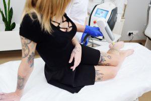 Consejos para conseguir un mejor resultado en tu piel tras eliminar un tatuaje con láser