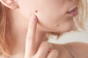 Quitar lunares y verrugas del rostro con láser: todas sus ventajas