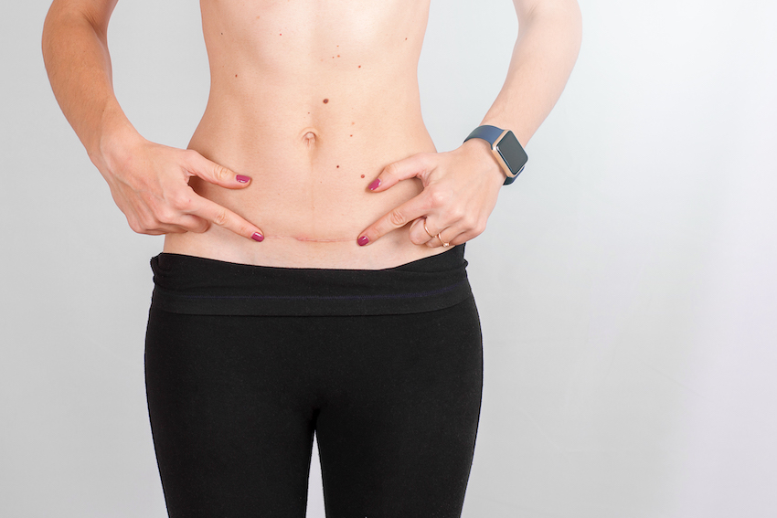 Cuidados de una cicatriz de cesárea y cómo eliminarla
