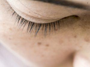 Melasma: por qué aparecen y cómo podemos eliminarlos
