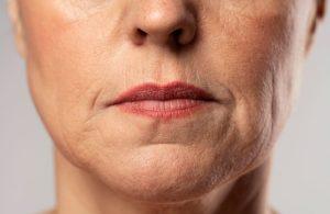 detalle del rostro de una mujer que presenta arrugas conocidas como lineas de marioneta