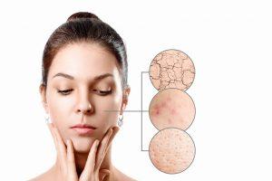 Cómo cuidar la piel sensible de tu rostro y cuerpo