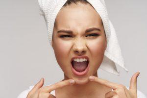 mujer alterada intentando explotar un granito de acne en su rostro
