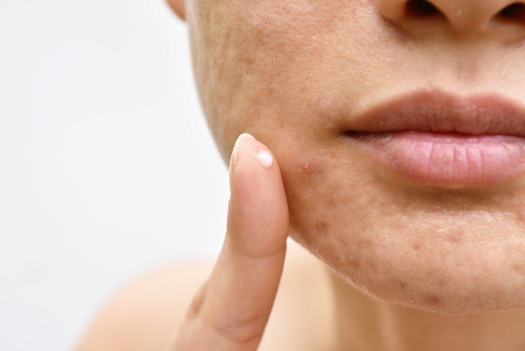 piel del rostro de mujer con acné que se aplica crema con acido azelaico